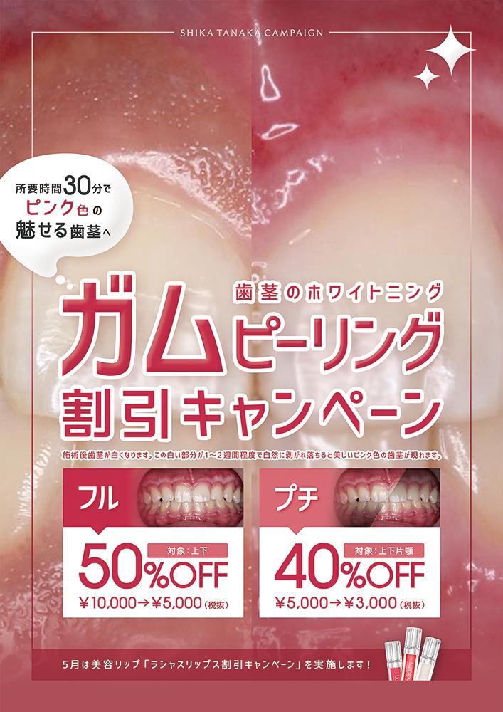 歯科医院キャンペーンポスター「ガムピーリング割引キャンペーン」