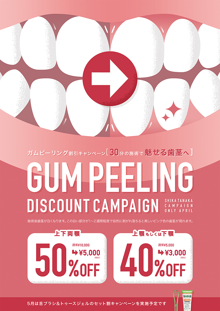歯科医院キャンペーンポスター「GUM PEELING DISCOUNT CAMPAIGN」